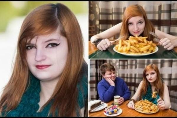 Δεν το χωράει ο νους: Αυτή η πιτσιρίκα έτρωγε μόνο τηγανητές πατάτες για 5 χρόνια! Δείτε τι έπαθε... (Photos)