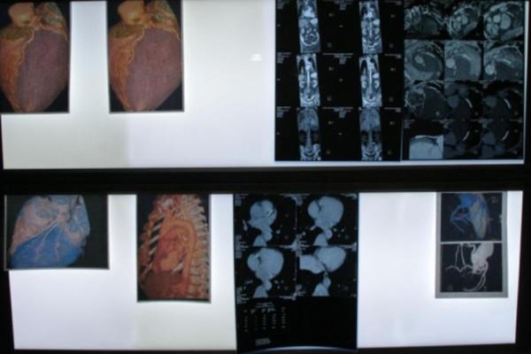 Θρίλερ στην Θεσσαλονίκη: Έκανε εξετάσεις και έπαθαν πλάκα με αυτό που βρήκαν στο στομάχι του