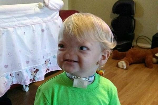 Θλίψη! Πέθανε το δίχρονο αγοράκι που είχε γεννηθεί χωρίς μύτη!