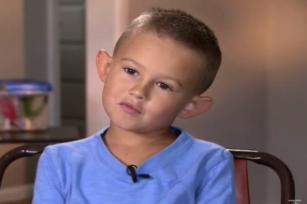 6χρονος κάνει πλαστική επέμβαση και γίνεται αγνώριστος - Επί χρόνια δεχόταν bullying για τα αυτιά του που έμοιαζαν με ξωτικού (Photo & Video)
