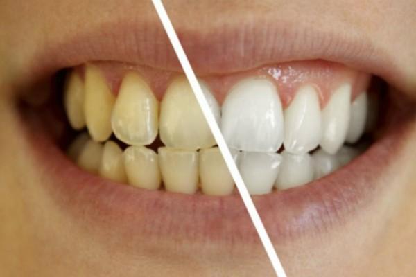 Διάλυμα που κάνει θαύματα! Θα κάνει τα δόντια σας πιο αστραφτερά αμέσως