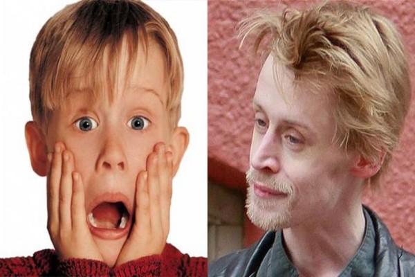 Εικόνες - σοκ: 15 διάσημοι πριν και μετά την χρήση ναρκωτικών! (photos)