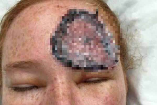 Όταν έμεινε έγκυος κάτι παράξενο βγήκε στο πρόσωπο της! Αυτό που αφαίρεσαν οι γιατροί τους άφησε άφωνους!