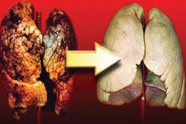 Τέλος στον εφιάλτη: Καθαρίστε με φυσικό τρόπο τους πνεύμονές σας από την πίσσα και την νικοτίνη!