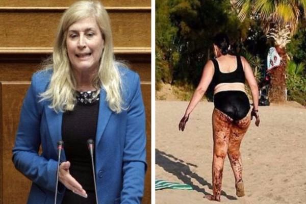 Η γυναίκα το ομολόγησε και η Αυλωνίτου επιμένει ότι είναι... photoshop!