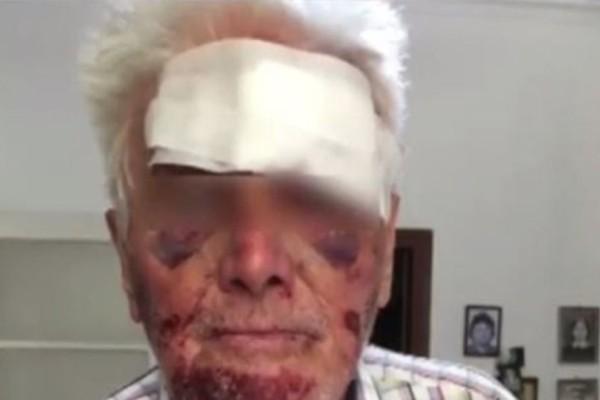 Φρίκη στο Γαλάτσι: Ληστές χαράκωσαν ηλικιωμένο! Του ζητούσαν επίμονα χρήματα! (video)