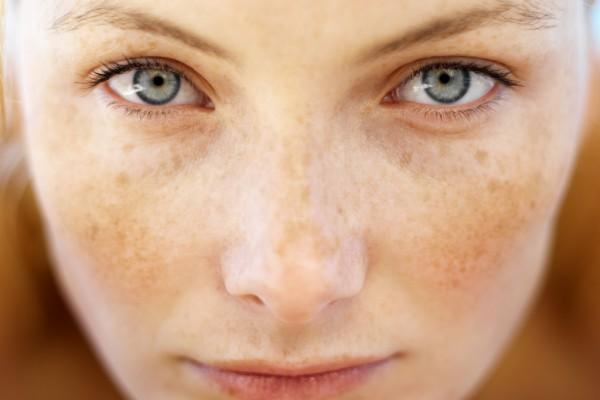 Μια γυναίκα με μεγάλη μύτη εξομολογείται τις ανησυχίες της. Γιατί δεν κάνει πλαστική;