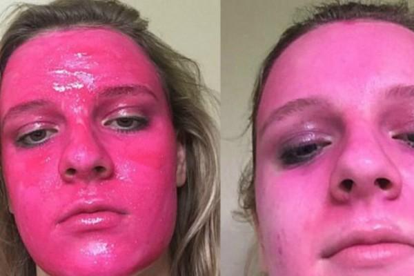 Δεν υπάρχει: Γυναίκα βάφτηκε ροζ - Πειραματίστηκε με προϊόν, έβαψε ροζ το πρόσωπό της και τώρα δεν μπορεί να επαναφέρει το χρώμα του!