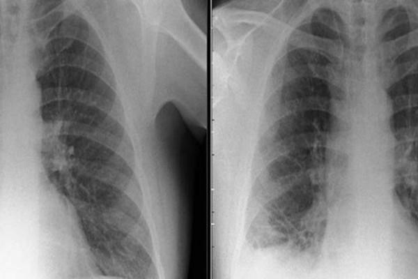 Νόμιζαν ότι είναι όγκος στον πνεύμονα. Όταν ανακάλυψαν τι πραγματικά είχε σφηνώσει εκεί, ανατρίχιασαν! (photo)