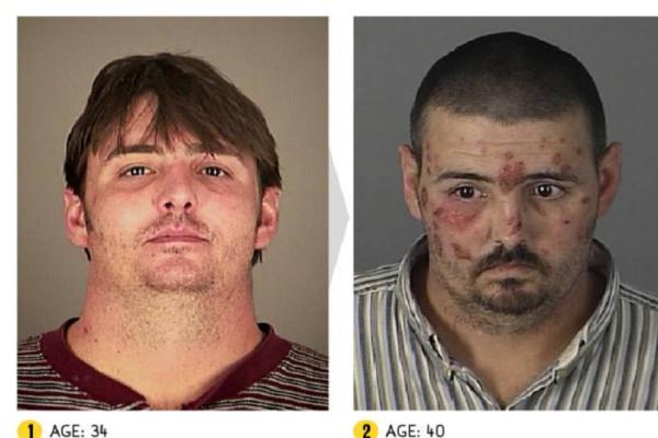 Η τρομακτική μεταμόρφωση ανθρώπων που κάνουν χρήση ναρκωτικών (Photos)