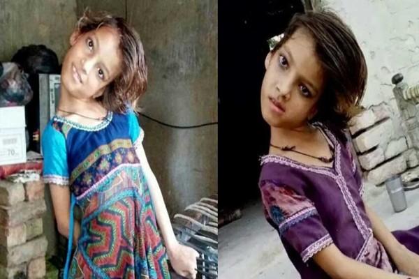 Σοκ: 9χρονη ζει με το κεφάλι της γυρισμένο 180 μοίρες! (Video)