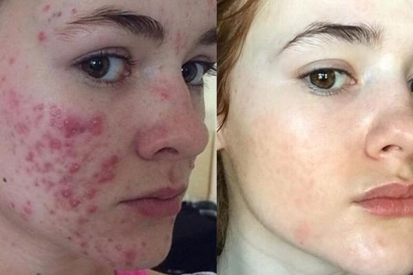 Αληθινή ιστορία: Η μάχη μιας κοπέλας με την ακμή - Το πριν και το μετά!
