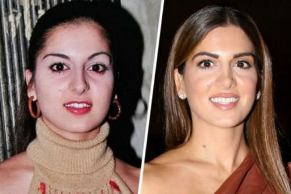Η αλλαγή στην εμφάνιση της Σταματίνας Τσιμτσιλή από το 1999 μέχρι σήμερα είναι απίστευτη!