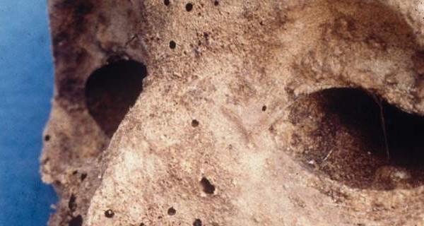 Βρήκαν στέλεχος ηπατίτιδας Β σε μούμια παιδιού του 16ου αιώνα!
