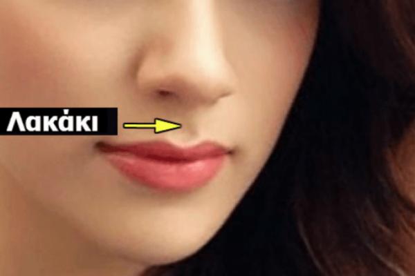Εσείς έχετε αυτό το λακάκι ανάμεσα στη μύτη και τα χείλια; Αν ναι δείτε τι είναι!