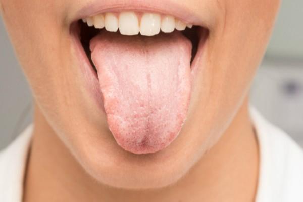 Καρκίνος στη γλώσσα: Πώς θα τον αναγνωρίσετε!