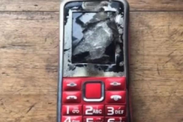 Τραγικό: 12χρονος έχασε το δάχτυλο και το μάτι του όταν εξερράγη το κινητό τηλέφωνο!