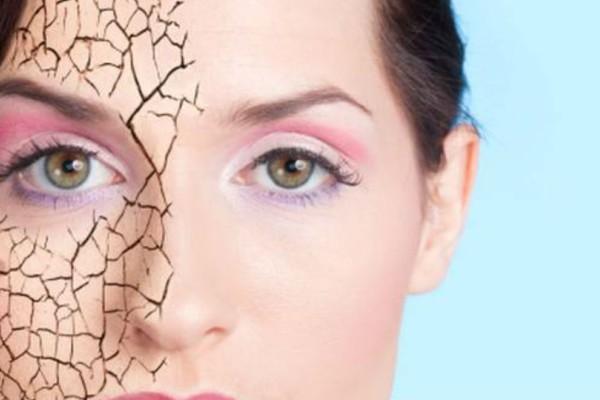 Έχεις ξηρό δέρμα; Δες από ποια σοβαρά νοσήματα κινδυνεύεις.