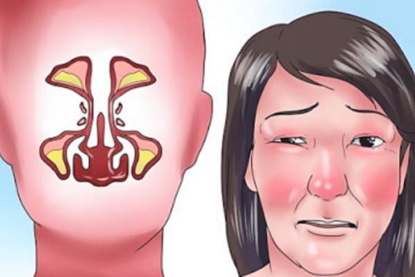 Δείτε πώς μπορείτε να ξεβουλώσετε τη μύτη σας μέσα σε μόλις 2 λεπτά. Πρέπει να το δοκιμάσετε!