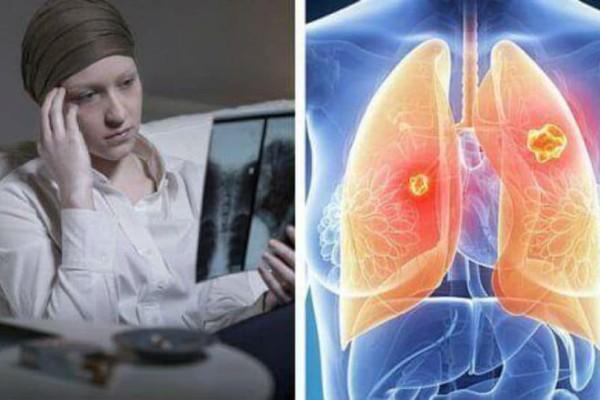 Νέα θεραπεία για τον καρκίνο του πνεύμονα: Δείτε πως θα αντιμετωπιστεί!