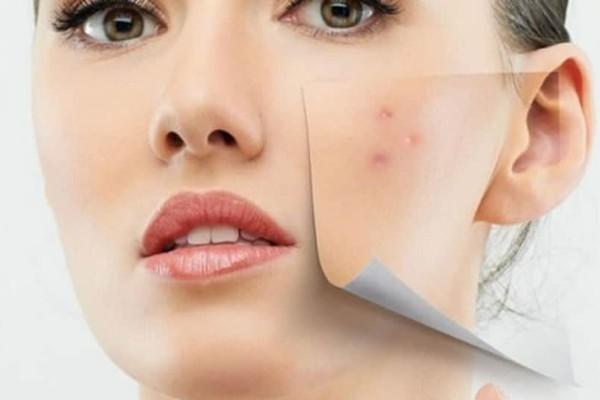 DIY: H μάσκα που καθαρίζει το πρόσωπο σου από τα σπυράκια μέσα σε λίγες ώρες!