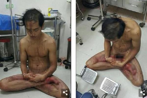 Έβλεπε πορνό, έπαθε φρίκη και έκοψε τα γεννητικά του όργανα από την ρίζα! (photos)