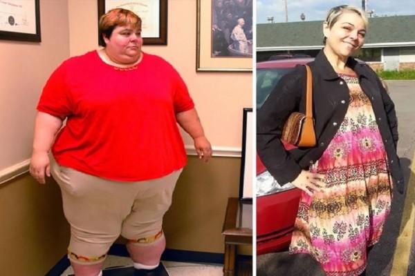 Της... μεταμορφώσεως! Το πριν και το μετά των πιο παχύσαρκων ατόμων (photos)