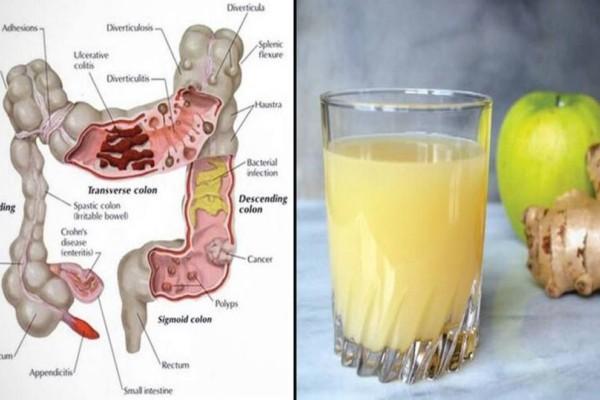 Καθαρίστε το έντερό σας και αδυνατίστε 4-7 κιλά, πίνοντας καθημερινά ένα ποτήρι από αυτόν το χυμό!