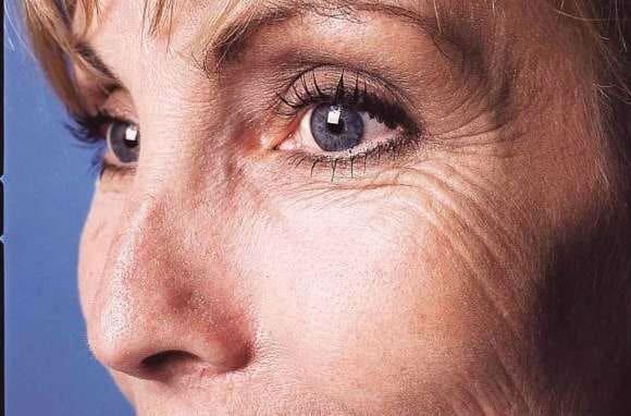 Θες να εξαφανίσεις τι ρυτίδες γύρω από τα μάτια; Αυτοί είναι οι 3 τρόποι....