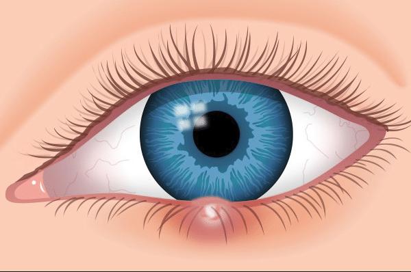 Κριθαράκι στο μάτι: Ποια είναι τα αίτια και ποια η θεραπεία;