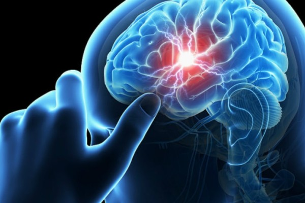 Εγκεφαλικό επεισόδιο: Τα πρώιμα σημάδια και πώς να τα αναγνωρίσετε