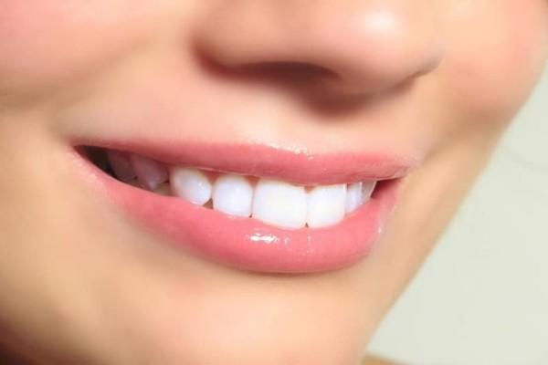 Θες ολόλευκα δόντια; - Πώς θα τα αντιμετωπίσεις με 5+1 φυσικούς τρόπους!