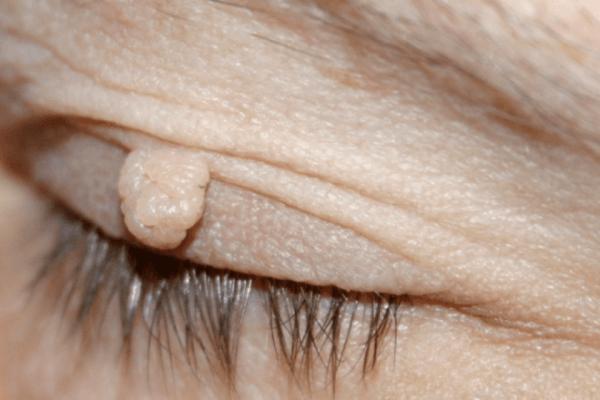 15 φυσικοί τρόποι για να απαλλαγείτε άμεσα από κηλίδες στο δέρμα, κρεατοελιές και σπυράκια!