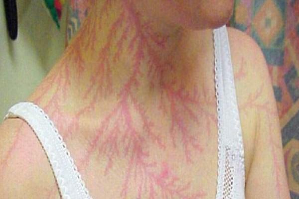 Τα σοκαριστικά σημάδια που άφησε ο κεραυνός στο σώμα ανθρώπων! (photos)