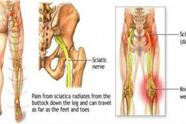 Με αυτές τις 2 ασκήσεις ξεκλειδώστε το ισχιακό νεύρο και πείτε αντίο στον πόνο σε 2 μόλις λεπτά!