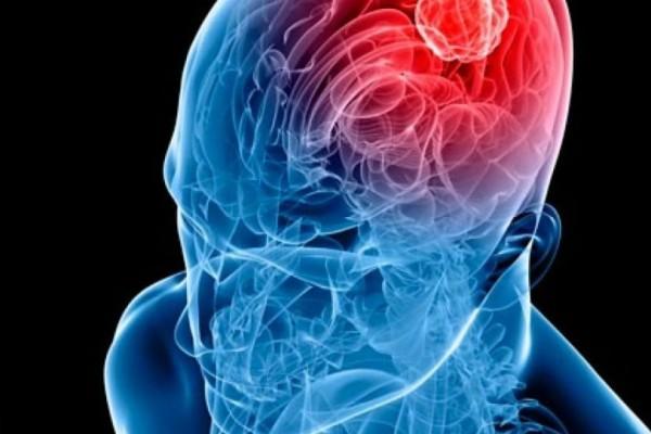 Όγκος στον εγκέφαλο: Τα 8 συμπτώματα που δείχνουν ότι κάτι