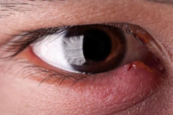 Κριθαράκι στο μάτι: 5 τρόποι σπιτικής αντιμετώπισης και πρόληψης