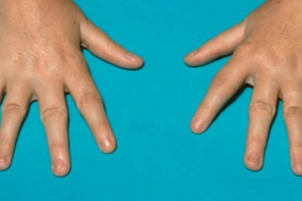 Ρευματοειδής αρθρίτιδα: Αυτά είναι τα 12 πρώιμα σημάδια