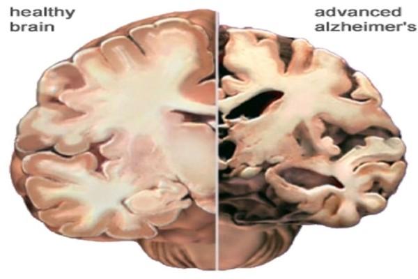 Απίστευτο: Σύστημα τεχνητής νοημοσύνης προβλέπει το Αλτσχάιμερ!
