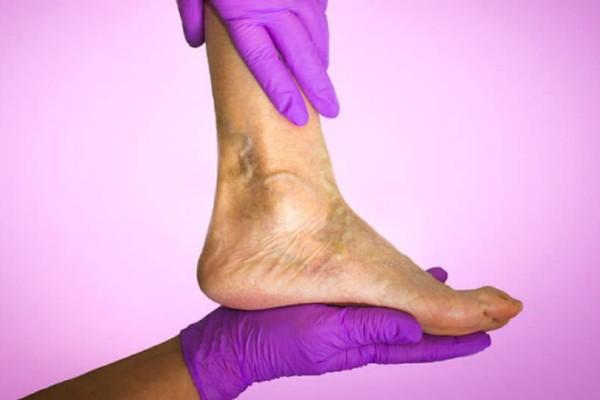 Οίδημα ποδιών & αστραγάλων: Με ποιες παθήσεις συνδέεται