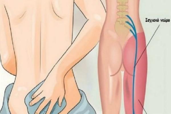 Ισχιαλγία: 8 πολύτιμες θεραπείες που θα σε ανακουφίσουν από τον πόνο