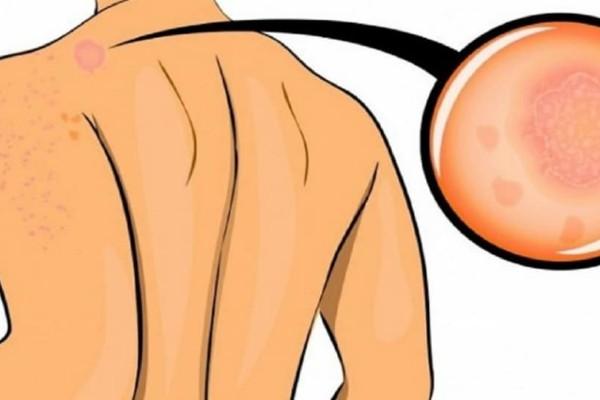 7 σημάδια – καμπανάκια που υποδηλώνουν αγχώδη διαταραχή!