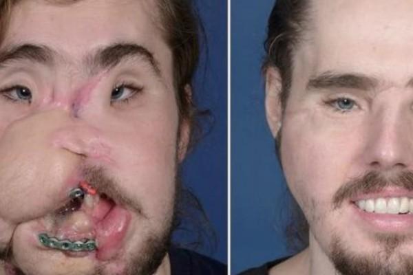Αυτοπυροβολήθηκε, αλλά επέζησε: Εκανε μεταμόσχευση προσώπου! Το πριν και το μετά