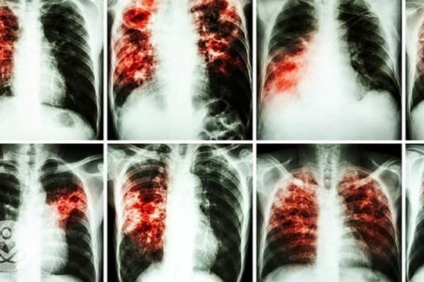 Προσοχή: Είναι πιο καρκινογόνα και από το κάπνισμα και όλοι τα χρησιμοποιούμε καθημερινά