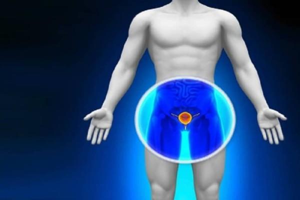 Τόσες φορές πρέπει να εκσπερματίζει ένας άνδρας τον μήνα για να αποφύγει τον καρκίνο του προστάτη