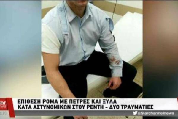 Βίντεο ντοκουμέντο από επίθεση Ρομά σε αστυνομικούς!