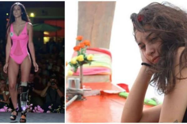 Μάθημα ζωής: 18χρονη καλλονή με προσθετικό πόδι έφτασε στον τελικό των καλλιστείων!