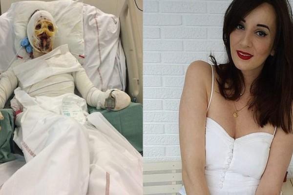 Γυναίκα απέκτησε εγκαύματα στο 90% του σώματος της εξαιτίας αλλεργικής αντίδρασης στην πενικιλλίνη
