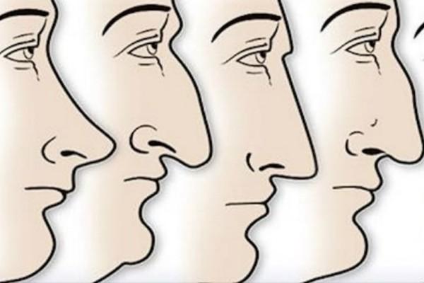 Δείτε τι αποκαλύπτει το σχήμα της μύτης σας για την προσωπικότητά σας;