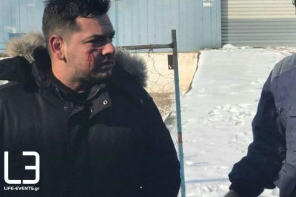 Διαβατά: Οδηγός νταλίκας τραυματίστηκε μετά από επεισόδιο με πρόσφυγες! (video)
